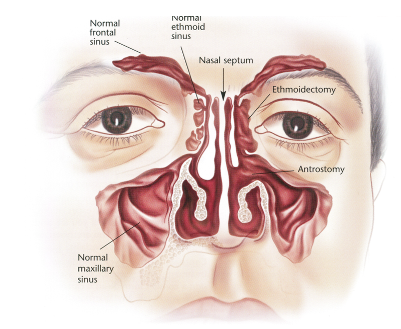 Sinus Surgery - Dr Bridget Clancy | ENT Surgeon